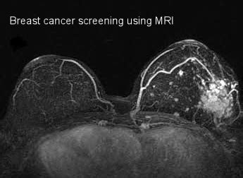 New Mri Testing For Breast Cancer Screening by Factors Surrounding Breast Mri Screening And Treatment