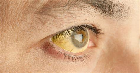 tipos de enfermedades enfermedades de transmisi 211 n sexual