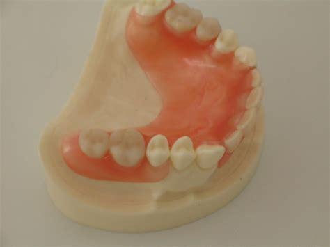 protesi dentarie mobili senza palato protesi mobile studioodontoiatricoparenti