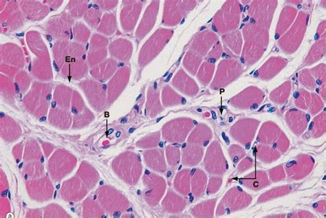 transverse section of skeletal muscle ourlad s paradigm muscle tissue
