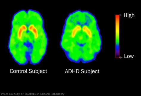 Add Adhd Or Just Plain Normal Boy by Adhd Brain Scan Encognitive
