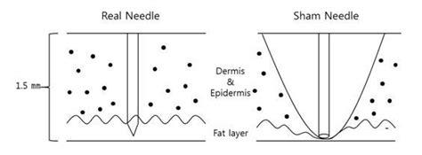 the living needle modern acupuncture technique books new development in sham acupuncture needle intechopen