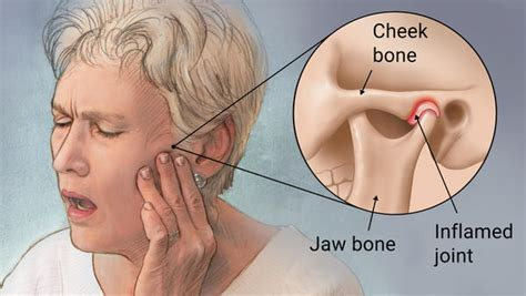 what are the causes and symptoms of jaw pain ehow a holistic approach to improving tmj symptoms