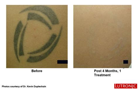 new laser tattoo removal dermis advanced skin care ottawa