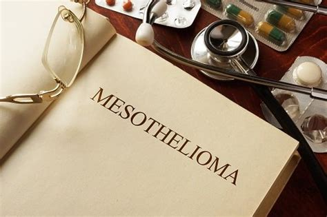 Mesothelioma Attorney Houston 5 by Mesothelioma Attorney The Best Mesothelioma Lawyers