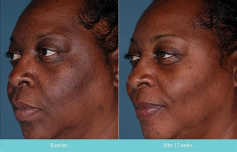 light rx before and after obagi tretinoin cream 0 1 rx 20g skinstation