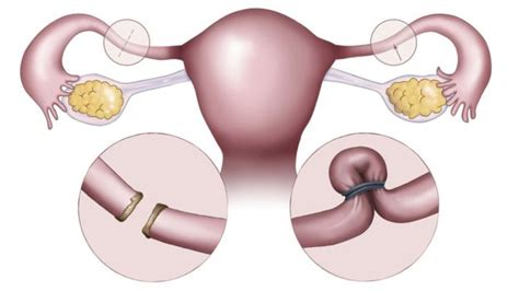 Sterilisation After C Section by
