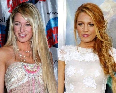 naturally beautiful who still had naturally beautiful who still had plastic surgery before and after photos it s