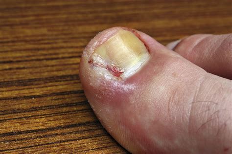 treating an infected ingrown toenail infobarrel triad foot ankle center