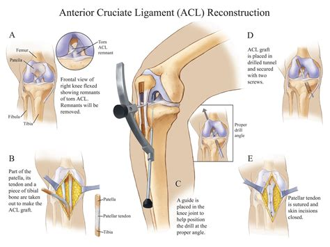 anterior cruciate ligament acl anterior cruciate ligament acl reconstruction compel