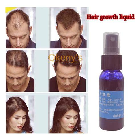 styling gel hair loss yuda hair growth pilatory alopeciahair loss treatment