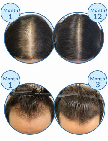 male hair loss pattern due to stress stress of modern life decreases family time and causes