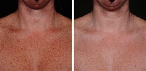 skin rejuvenation melrose ma photofacial melrose medspa