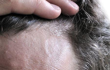 schuppen augenbrauen eucerin acerca de la piel dermatitis seborreica