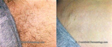 before and after shots of males with pubic hair and then with it removed laser hair removal crutchfield dermatology eagan minnesota