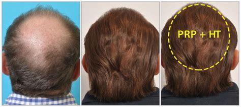 prp for hair loss 100 money back guarantee prp hair loss treatments prp for hair loss hair