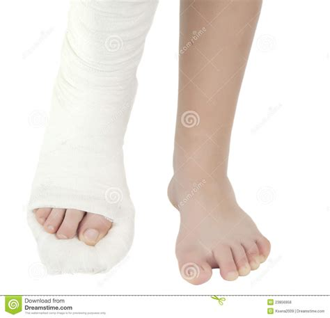 the cast of with a leg in a plaster cast royalty free stock photos image 23856958