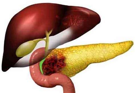 alimentazione tumore pancreas tumore al pancreas una proteina invalida l aderenza delle