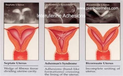 c section adhesions treatment adhesions due to fibroid surgery health nigeria
