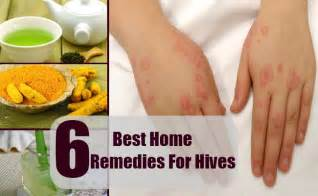 home remedy for hives 6 best home remedies for hives treatment and cure for