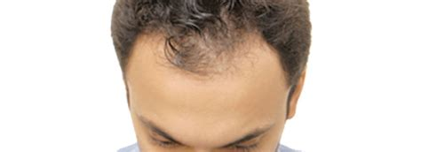 Hair Shedding After Hair Transplant by No Shedding After Hair Transplant Hair Transplant Dubai