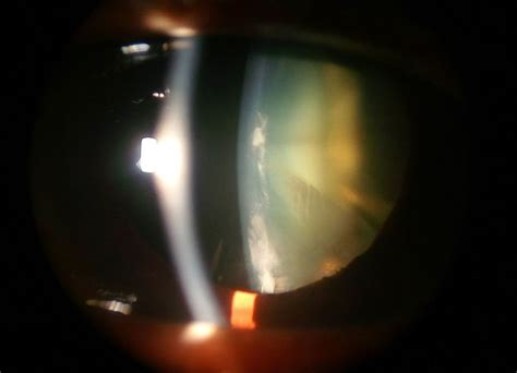 common types  cataract pittsburgh eye associates