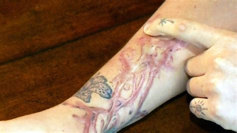 barrie tattoo removal st eustache claim removal treatment resulted