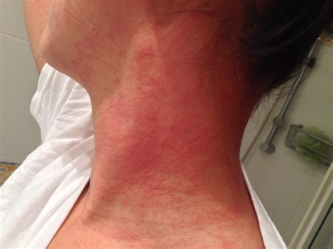 itchy rash on face and neck my fiancee has an itchy rash that started on her head face