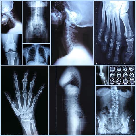 imagenes de rayos x animadas mariajose rayos x