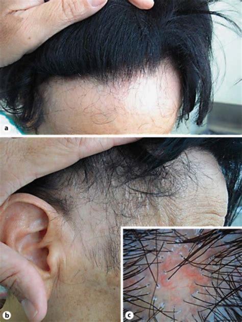female temporal hair recession female temporal hair recession a frontal recession with
