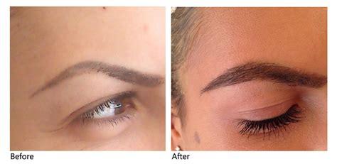 eyebrow transplant spiky hairs alert new trend detected eyebrows transplants