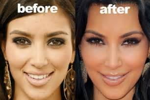 Before Surgery Plastic Surgery Allegations