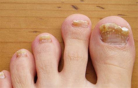 treating an infected ingrown toenail infobarrel reasons for infected toenail infobarrel