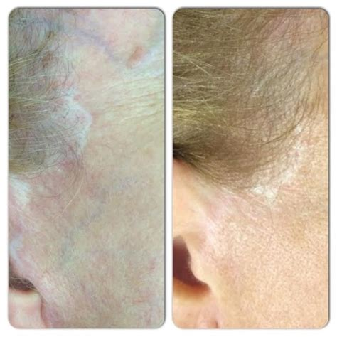 medical tattooing for scars needling medicare cosmetics