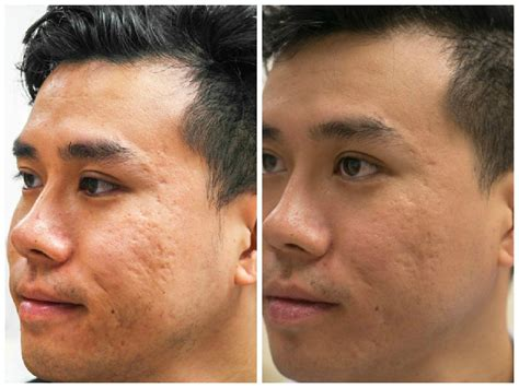 revitalization acne scars in ca monarch laser services