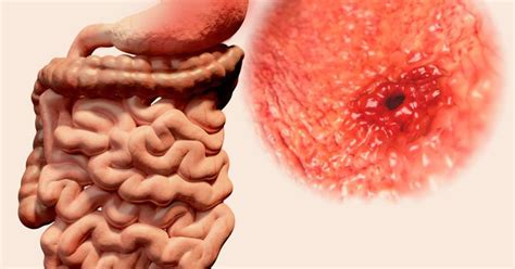 bleeding from rectum causes of vomiting blood and bleeding from the rectum livestrong