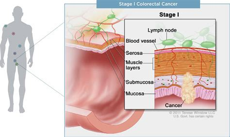 diagram of colon cancer cancer types myriadpro