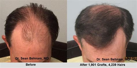 fue haircuts when can i get a haircut after fue hair transplant