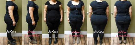 weight loss 3 months before and after weight loss encino before and after