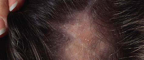 pattern of hair loss in lupus lupus hair loss how to deal with lupus hair loss