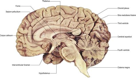 medial section of brain ventricular system neupsy key
