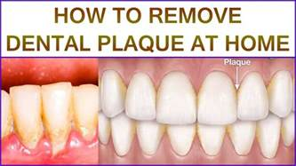 how to remove dental plaque at home