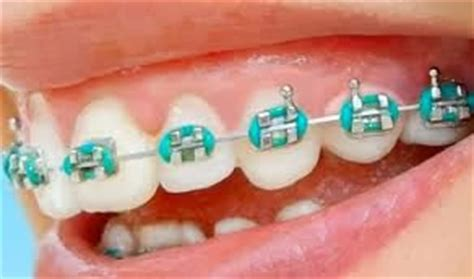 Rubber Bands For Braces Colors by We Care N You Smile Get It Ceramic Or Metal