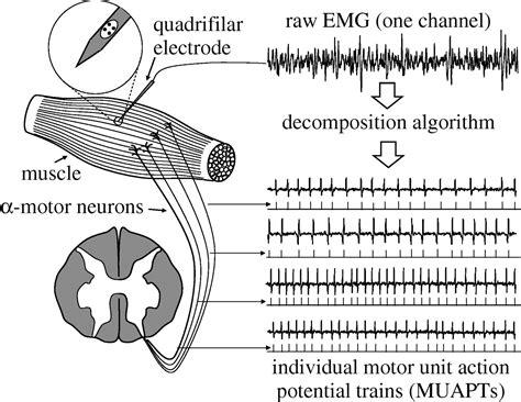 interference pattern analysis emg analysis of intramuscular electromyogram signals