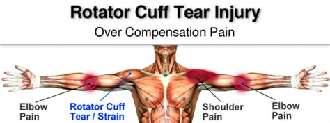 rotator cuff injury from bench press how swimmers can prevent shoulder injury