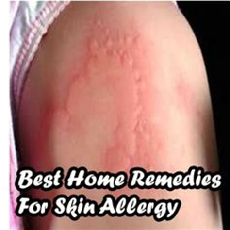 skin allergies home remedies health on thyroid cures and herbal remedies