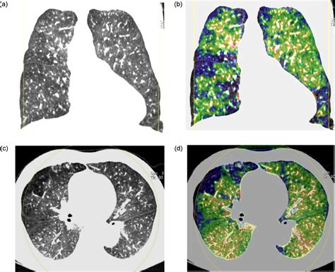 mosaic pattern perfusion analysis of perfusion defects by causes other than acute