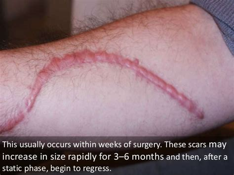 c section scar itching 1 year later presentation scars