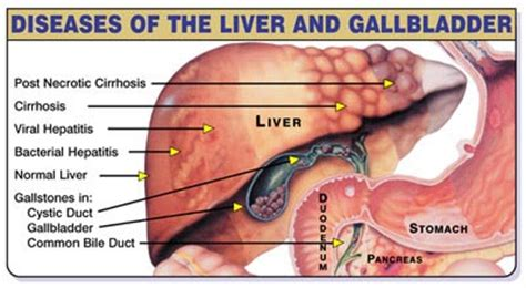 Liver And Gallbladder Detox Cleanse by The Liver Cleanse True Spiritual Gatherings