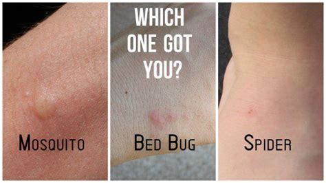 how to make bed bug bites go away spider bites vs bed bug bites what s the difference